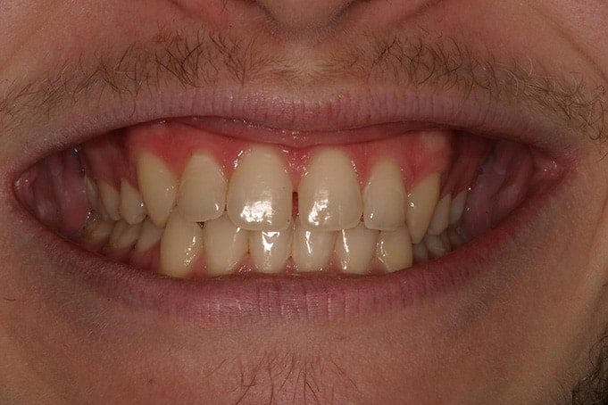 Teeth Straightening Invisalign Treatment Austin-before