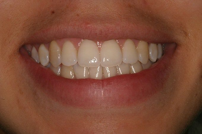 Teeth Straightening Invisalign TreatmentJasmin-after