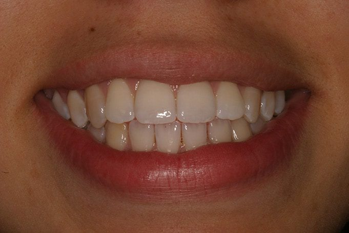 Teeth Straightening Invisalign TreatmentJasmin-before