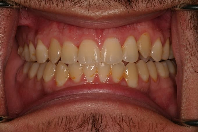 Teeth Straightening Invisalign TreatmentManuel-after