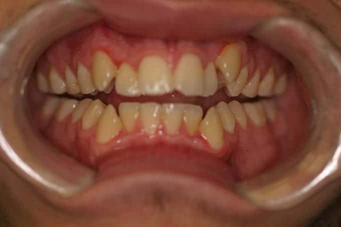 Teeth Straightening Invisalign TreatmentManuel-before