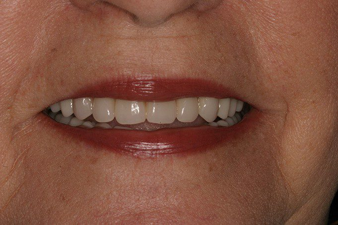 Implant Dentures Precision Cosmetic Dentistry & Digital Dentures