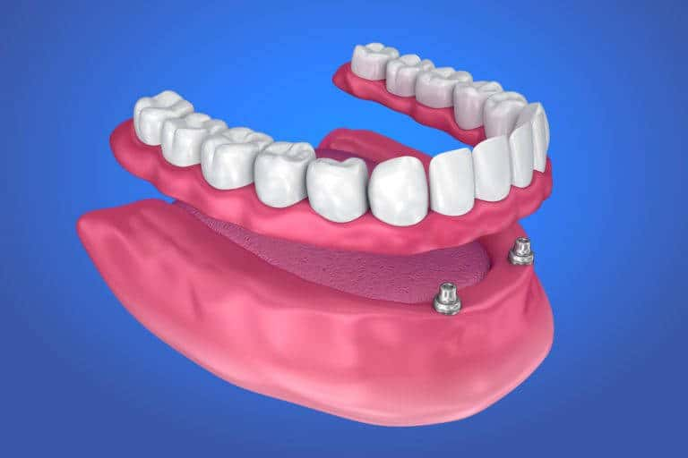 Implant Dentures  A Simple Solution for Loose Dentures