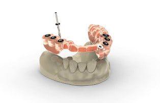 Dental Implants costs 3 bridges
